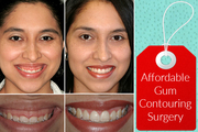 Best Cosmetic Dentist in Leeds for Gum Contouring Surgery