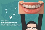 Ease and comfort of Invisible Braces in Leeds