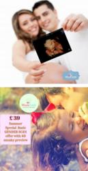 3d 4d pregnancy scan